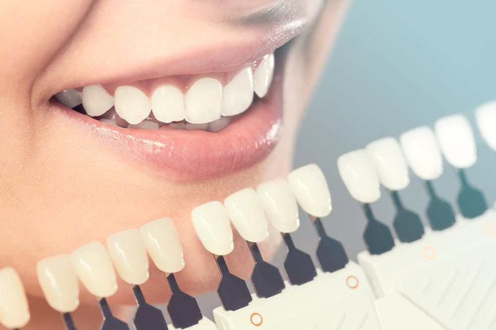 what we do - Santa Maria Family Dentistry